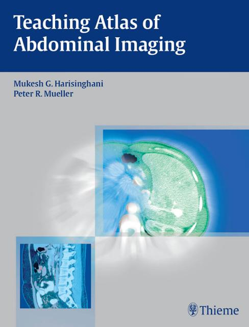 Abdominal imaging ebook abdominal imaging e book expert radiology series 1st edition kindle edition array teaching atlas of abdominal imaging ebook by mukesh g rh bookshout com fandeluxe Choice Image